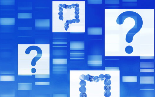 Frequently Asked Questions on the Management of Metastatic CRC