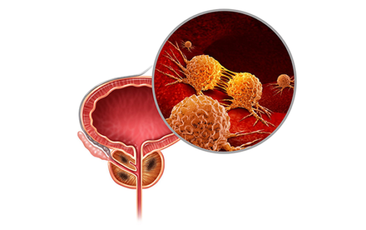 Survival Benefit With Novel PSMA-Targeted Radioligand in Metastatic CRPC