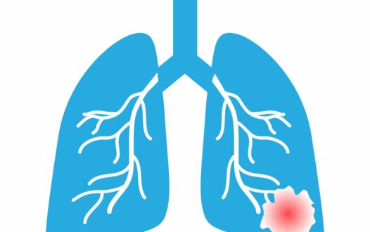 Benefit of Adjuvant Atezolizumab in PD-L1-Positive Early-Stage NSCLC